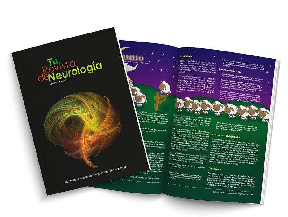 Tu-Revista-de-Neurologia
